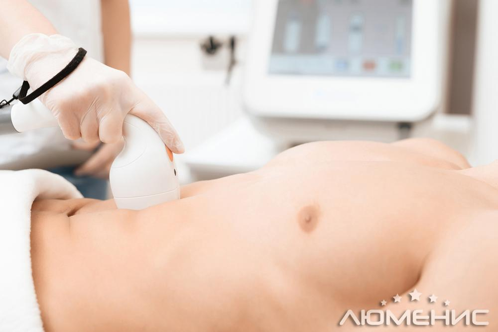 laser hair removal on the stomach